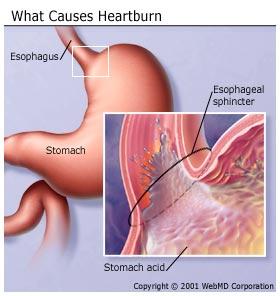 digestive_diseases_heartburn_gastroesophageal_reflux_disease_GERD