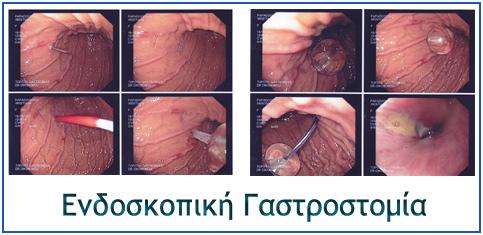 endoskopiki gastrostomia